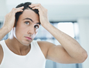 Man using best hair growth product on receding hair