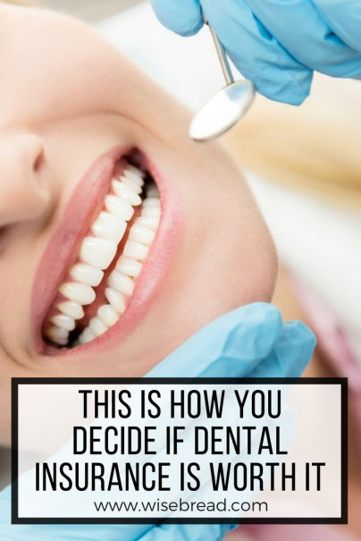 This Is How You Decide If Dental Insurance Is Worth It
